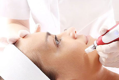 Micro Needling Treatment